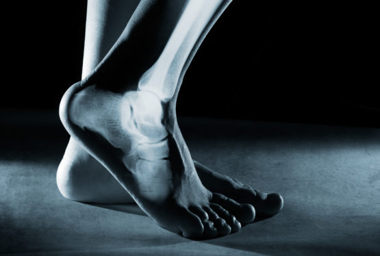 By Aaron M. O'Brien, MD Orthopaedic Surgeon, Foot and Ankle Fellowship Trained Specialist  We all want to be healthy. We are told to stay active and exercise regularly, which can help us feel better, have more energy, lose weight, and even live longer. The benefits of exercise are numerous, but too much of a […]